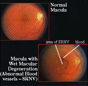 Wet Macular Degeneration.