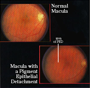 Pigment Epithelial Detachment.