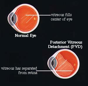 Posterior Vitreous Detachment.